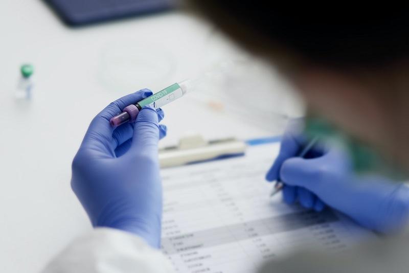 Differenza tra Test Sierologico e Test Molecolare nella lotta contro il COVID-19 (SARS-CoV-2)